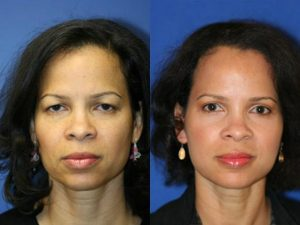 New York Facelift Anti-Aging Procedure