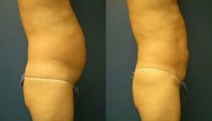 New York Fat Removal Procedure