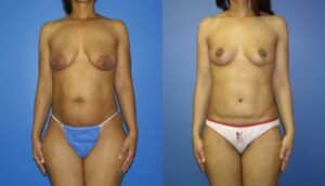 New York Breast Lift Tummy Tuck