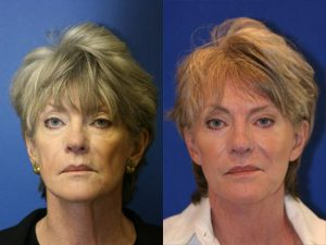 NYC Fat Grafting Anti-Aging Treatments