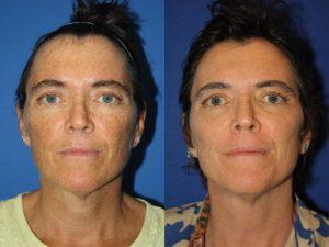 NYC Facial Hyperpigmentation Treatment