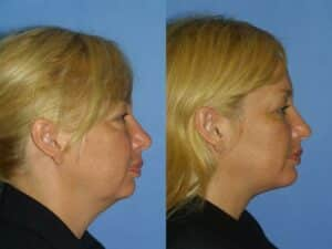 NYC Neck Lift Surgical Augmentation