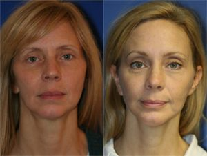NYC Browlift Surgery Anti-Aging