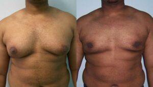 NYC Male Breast Reduction Surgery