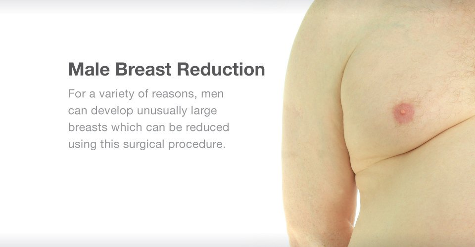 Gynecomastia Treatment at Gotham Plastic Surgery