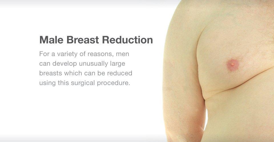 Gynecomastia Treatment at Gotham Plastic Surgery