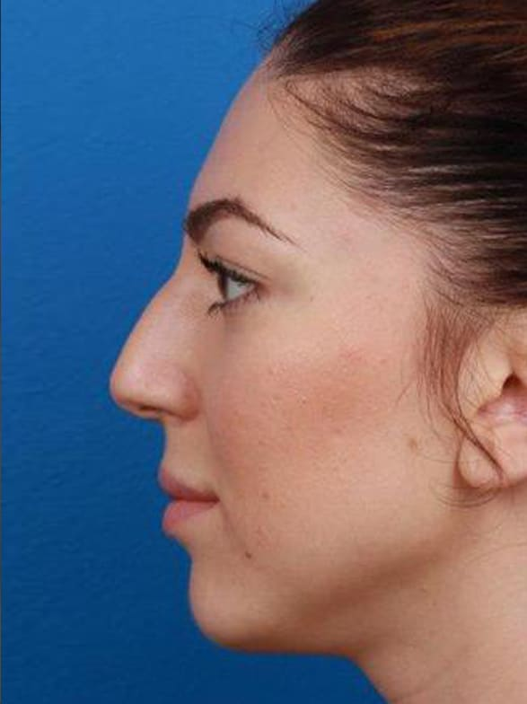 Before image of profile view of Caucasian female rhinoplasty patient with brown hair in our New York City plastic surgery clinic 009381