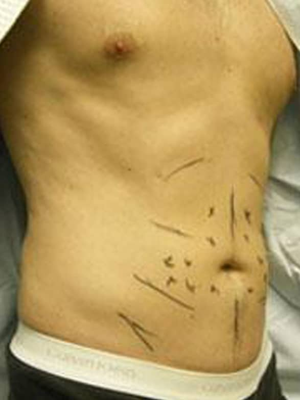 Before image of Three quarter view of male liposuction patient in our New York City plastic surgery clinic