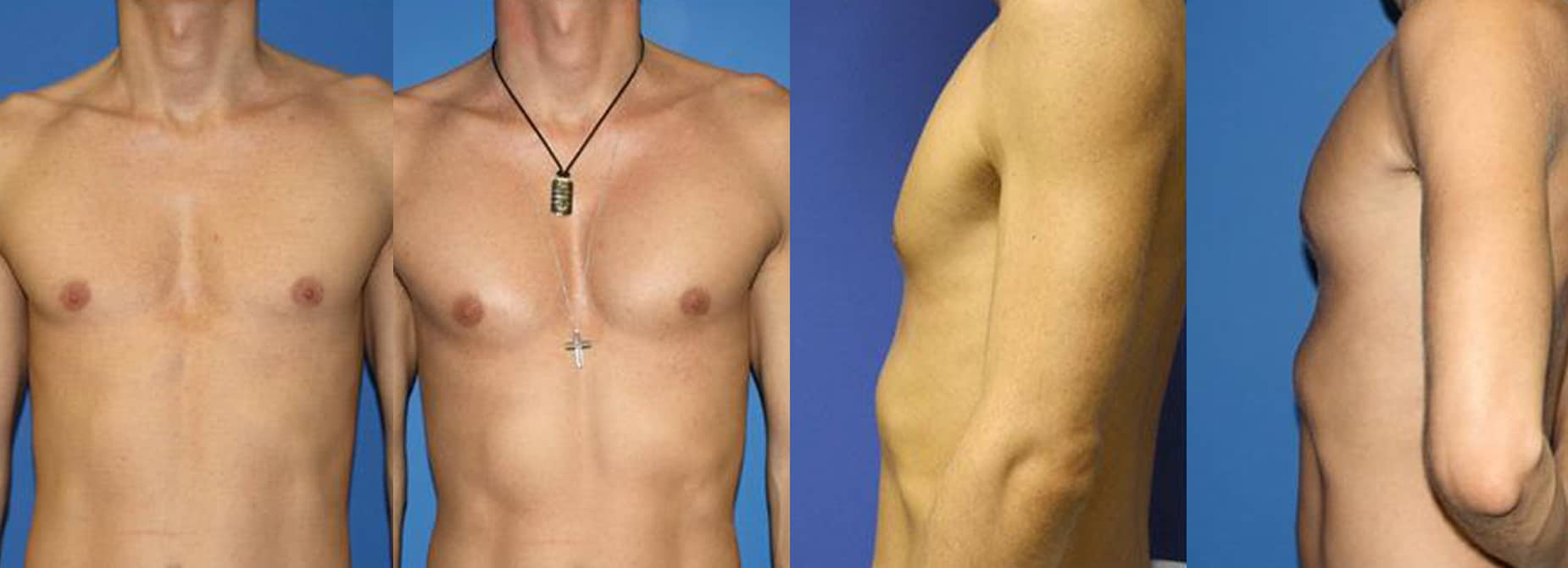 Before / After images of a young man after body contouring procedure. After the procedure, six packs are more visible and chest and other muscles are more prominent, giving an athletic outlook, New York, NY