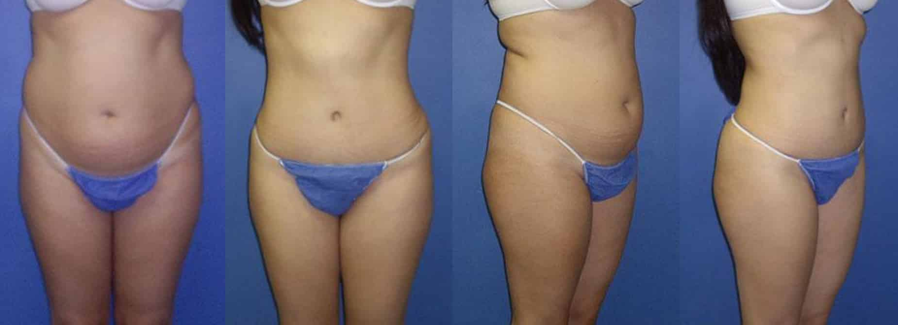 Images of a young female comparing her body before and after tummy tuck procedure. The belly fat is removed and the body is toned, New York, NY
