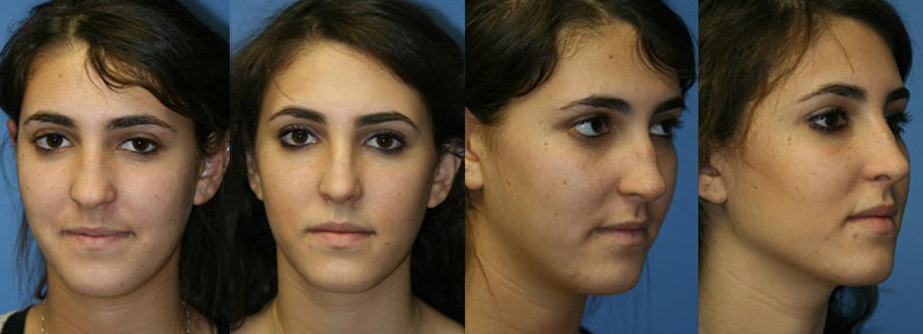 Before and after images of a young female after rhinoplasty, her nose looks slim and straight improving her overall appereance, New York, NY