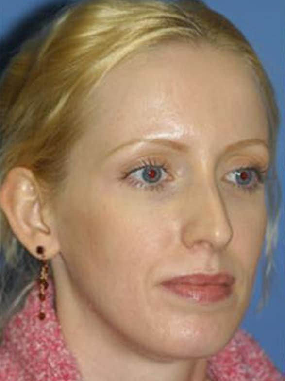 Before image of Three quarter view of caucasian female rhinoplasty and facelift patient with blonde hair in our New York City plastic surgery clinic