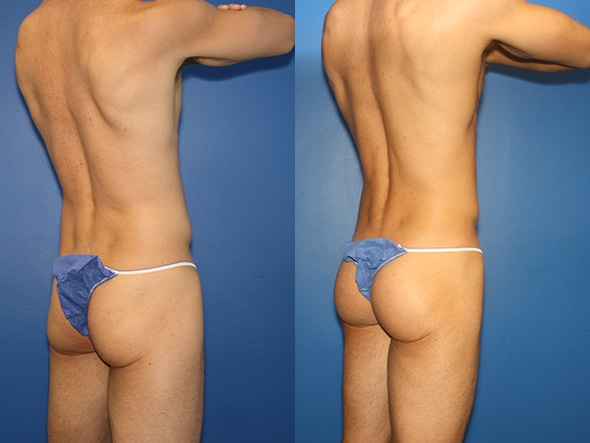 Gluteal augmentation to contour the buttocks by Dr. Steinbrech