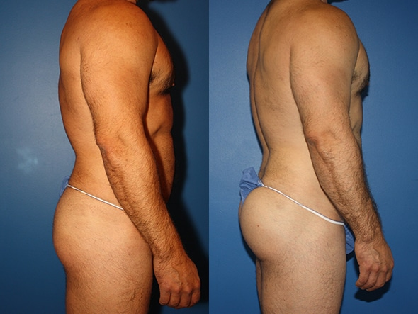 Gluteal augmentation to enhance the buttocks by Dr. Steinbrech