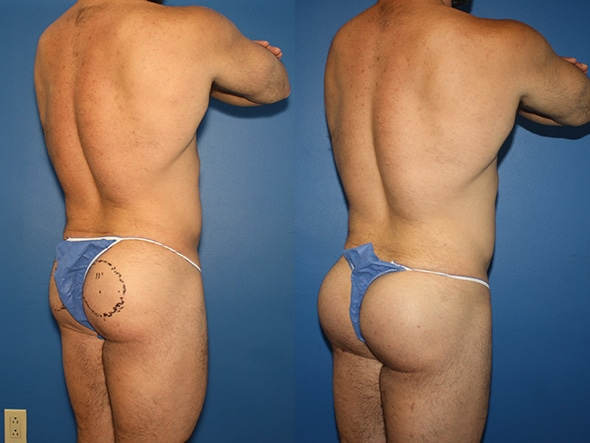 Gluteal Augmentation Before and After