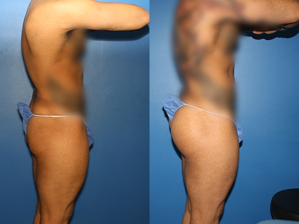 Gluteal augmentation to enhance buttock size by Dr. Steinbrech