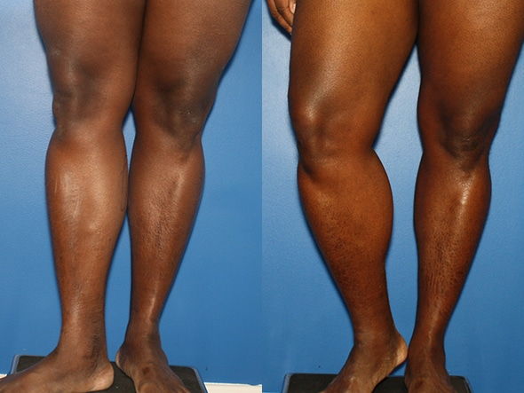 Calf Implants Procedure