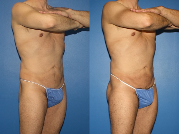 Gluteal augmentation to improve the buttocks by Dr. Steinbrech
