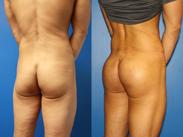 Gluteal augmentation to improve buttock shape by Dr. Steinbrech
