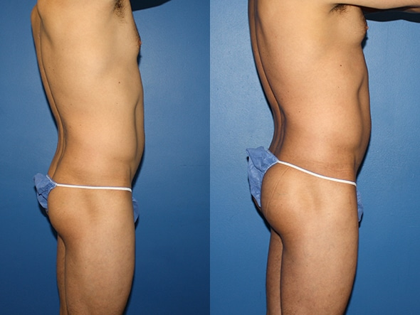 Gluteal augmentation to increase buttock size by Dr. Steinbrech
