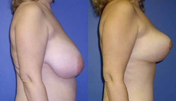 patient-1000-breast-reduction-before-after-1