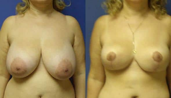 patient-1000-breast-reduction-before-after