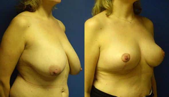 patient-1005-breast-reduction-before-after-1