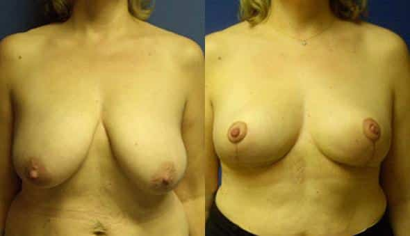patient-1005-breast-reduction-before-after