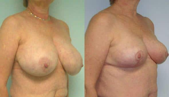 patient-1012-breast-reduction-before-after-1