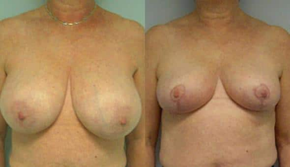 patient-1012-breast-reduction-before-after