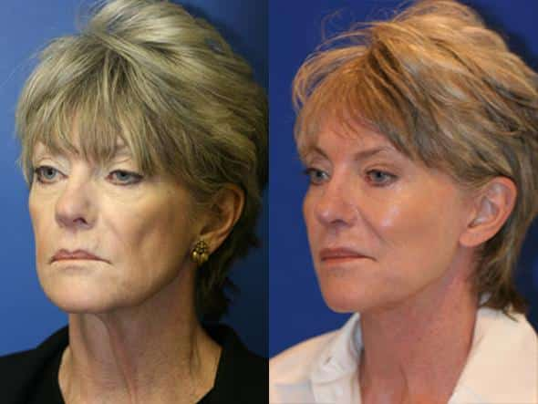 patient-1022-browlift-before-after-5