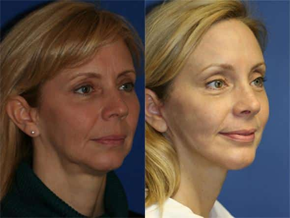 patient-1031-browlift-before-after-5