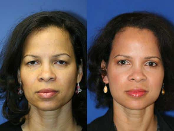 patient-1036-browlift-before-after-2