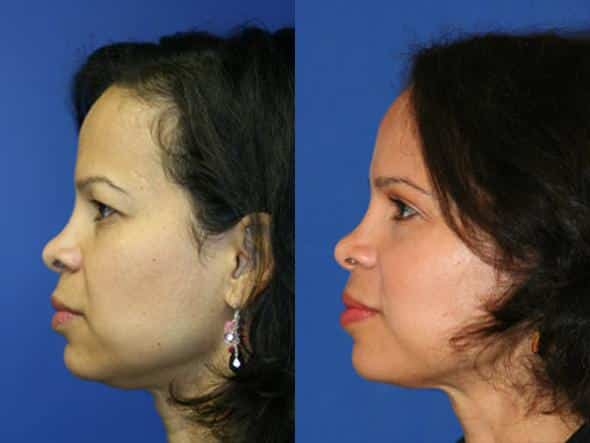 patient-1036-browlift-before-after-3-1