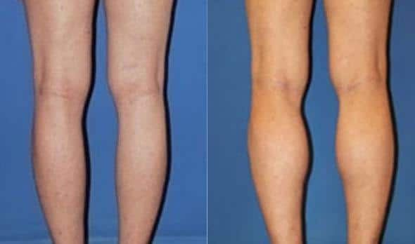 patient-1041-calf-implants-before-after