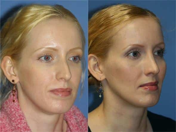 patient-1044-cheek-before-after-3