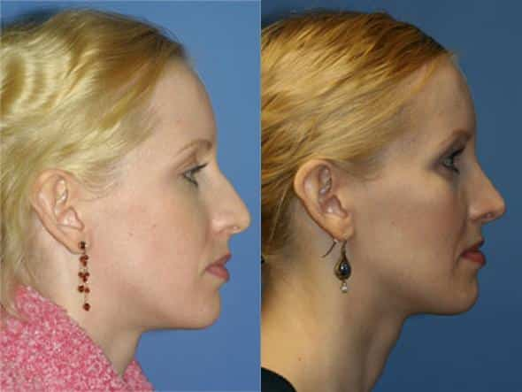 patient-1044-cheek-before-after-4