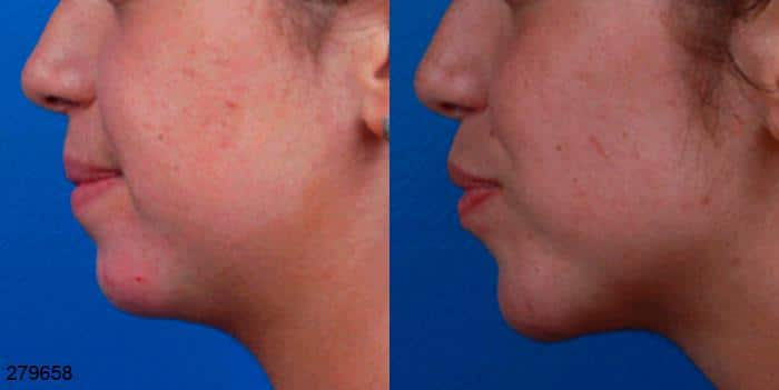 patient-1051-chin-before-after-1
