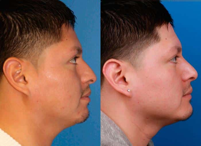 patient-1054-chin-before-after-1