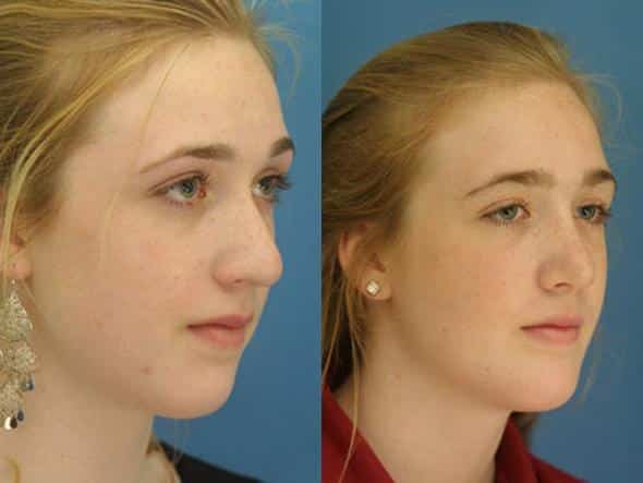 patient-1066-chin-before-after-2