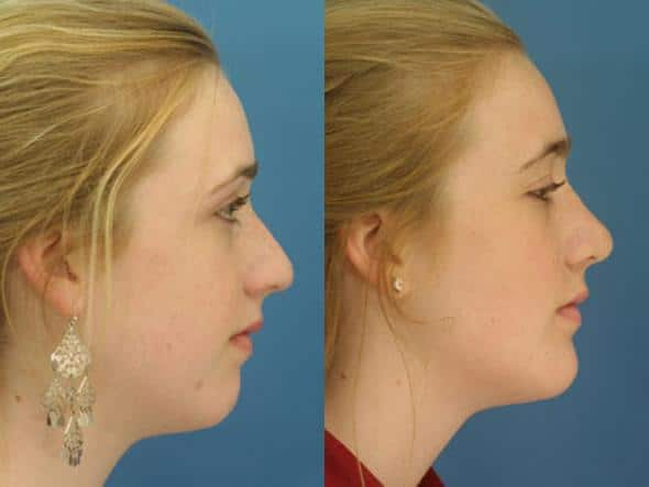 patient-1066-chin-before-after-3