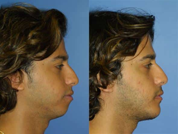 patient-1071-chin-before-after-1