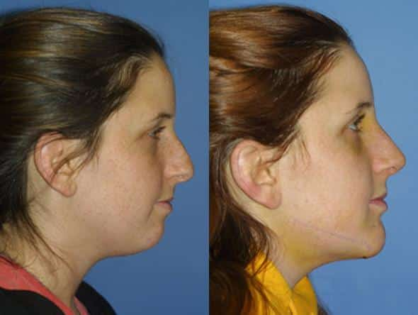 patient-1074-chin-before-after-3