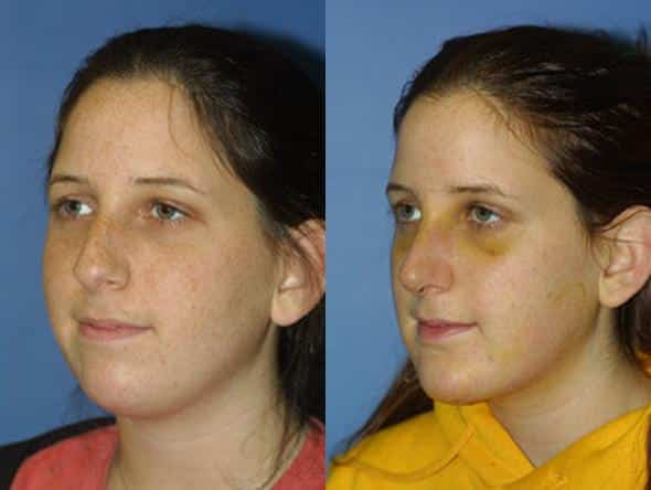 patient-1074-chin-before-after-4