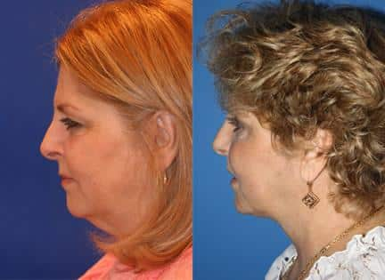 patient-10935-blepharoplasty-eyelid-surgery-before-after-2