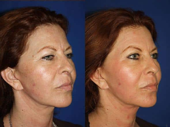 patient-1114-fractional-laser-before-after-1