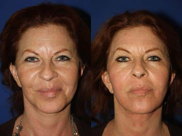 patient-1114-fractional-laser-before-after