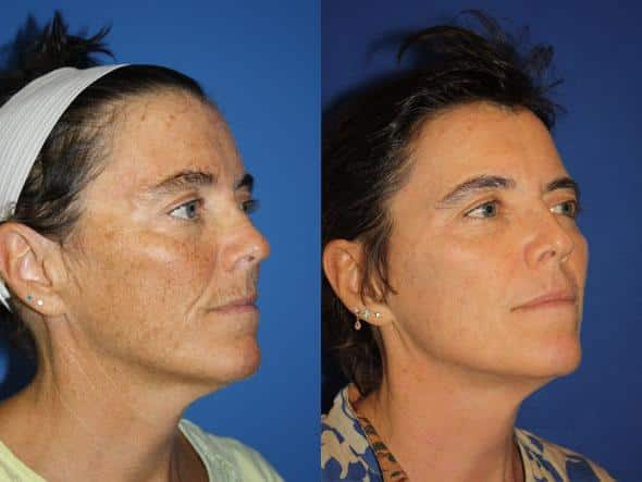 patient-1119-fractional-laser-before-after-1