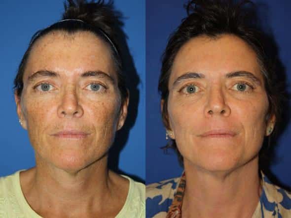 patient-1119-fractional-laser-before-after
