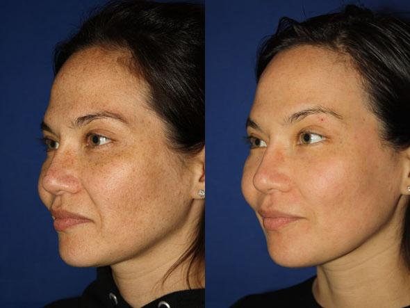 patient-1129-fractional-laser-before-after-1